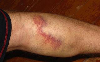 Виды операций на венах ног, реабилитация и последствия