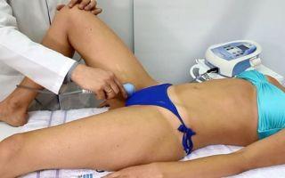 Все о лечении дисплазии тазобедренных суставов у детей: показания к ношению шин и широкое пеленание ребенка