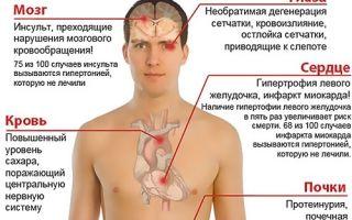 Особенности диеты при гипертонии: правила питания, запрещенные и разрешенные продукты