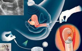 Удачное ЭКО: ощущения после переноса в протоколе и сколько нужно яйцеклеток?