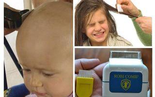 Как вылечить педикулез у детей за один день — обзор эффективных методов