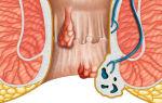 Геморрой и простатит: есть ли связь, как лечить оба заболевания сразу?