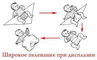 Причины появления и методы лечения дисплазии тазобедренных суставов у детей