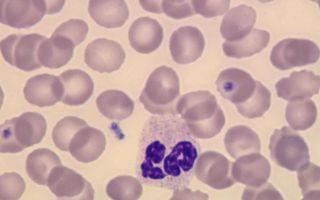 Повышаем уровень лейкоцитов в крови медикаментами и народными средствами