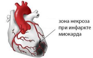 В каких случаях повышается уровень содержания ЛДГ в крови?