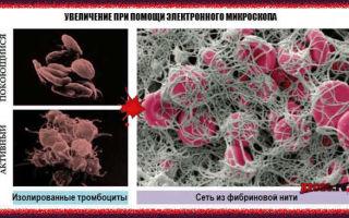 Процесс свёртывания крови и его нарушения: проявления патологии