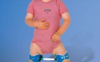 Обзор основных симптомов дисплазии тазобедренных суставов у детей