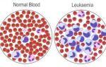 Чем опасен лимфобластный лейкоз?