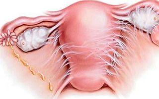 Спайки после кесарева сечения: как образуются, типичные симптомы, методы лечения и профилактики