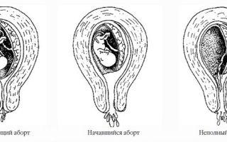 Сальпингоофорит и беременность: типы и опасные осложнения воспаления придатков матки