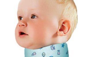 Методы лечения кривошеи у детей в разном возрасте