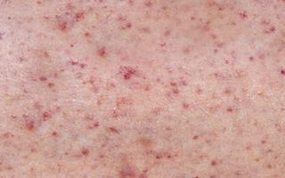 Опасны ли для ребенка повышенные тромбоциты и о чем свидетельствует это состояние?
