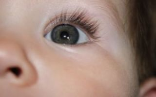 У ребенка глаза разного цвета — опасна ли гетерохромия у малыша?