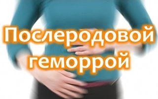 Эффективные свечи от геморроя при грудном вскармливании: обзор лучших препаратов