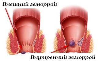Может ли быть температура при геморрое: причины и лечение