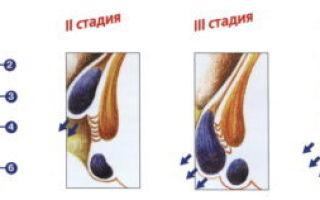 Стадии геморроя: описание и методы лечения