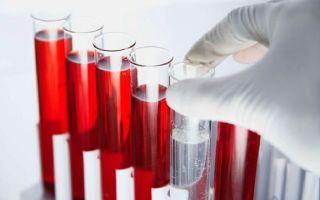 На что указывает повышенный уровень АЛТ в анализе крови, методы коррекции показателей