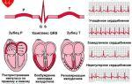 От чего зависит частота пульса человека: причины, норма и патология
