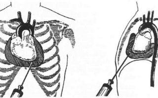 Диагностика, лечение и прогноз при тампонаде сердца