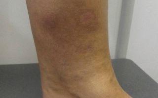 Каковы признаки варикоза вен, причины возникновения и лечение заболевания