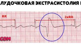 Почему возникает дополнительная хорда сердца?