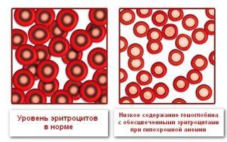 О чем говорит отклонение от нормы ЦП в анализе крови?