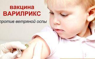 Ветряная оспа у детей: симптомы и клинические формы болезни, эффективные лечебно-диагностические мероприятия в домашних условиях