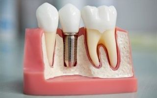 Можно ли во время беременности лечить зубы: все за и против терапии, советы стоматолога