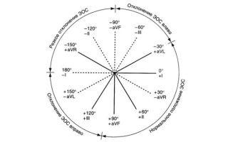 Нормальное расположение ЭОС и причины ее смещения