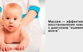 Ишемия головного мозга у ребенка: чего стоит бояться?