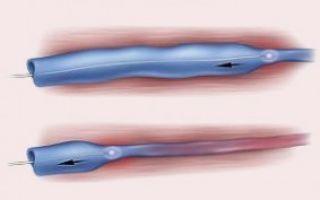 Оперативное лечение варикоцеле: как проходит и какие бывают виды операции
