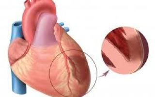 Инфаркт миокарда и его стадии, их особенности и длительность течения