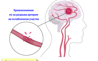 Малышева о геморрагическом инсульте: вся информация об опасном заболевании