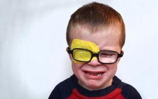Астигматизм у детей: терапия и профилактика смешанного и гиперметропического астигматизма глаз