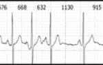 Причины, разновидности и лечение синоатриальной блокады