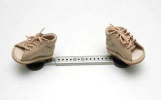 Лечение косолапости у детей: консервативные способы и показания для хирургического вмешательства, роль правильной обуви