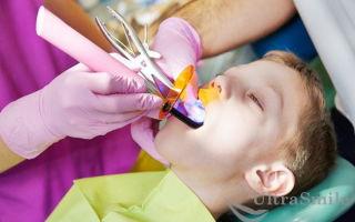 Методы лечения молочных зубов у детей — самые безопасные и эффективные способы терапии