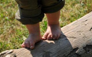 Плоскостопие у детей: понятие и характеристика заболевания, лечебные мероприятия и правильный выбор обуви