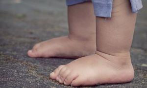 Мышечная гипотония у детей: признаки и возможные осложнения, самостоятельная диагностика