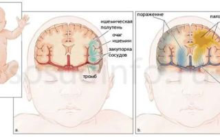 Особенности ишемии головного мозга и способы лечения