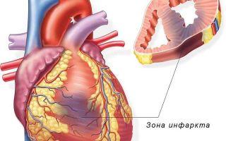 Краткий обзор основных причин инфаркта миокарда, лечение и профилактика заболевания