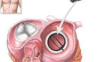 Диагностика и прогноз при недостаточности митрального клапана