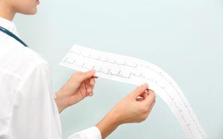 Что нужно знать о легочной гипертензии?