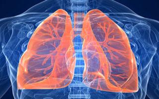 Каковы признаки инфаркта легкого, описание и методы лечения заболевания
