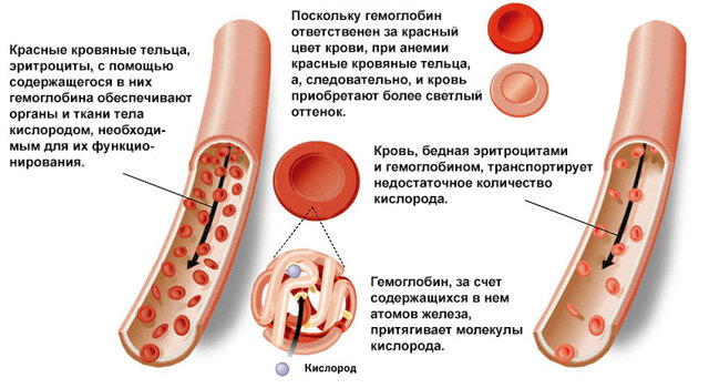 Анемия во время беременности
