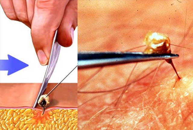 Укусы насекомых у детей: фото аллергии, средства и мази от укусов и аллергической реакции