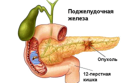 Симптомы проблем с печенью, поджелудочной железой и желчным пузырем