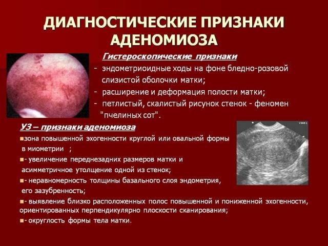 Эндометриоз операция когда можно забеременеть