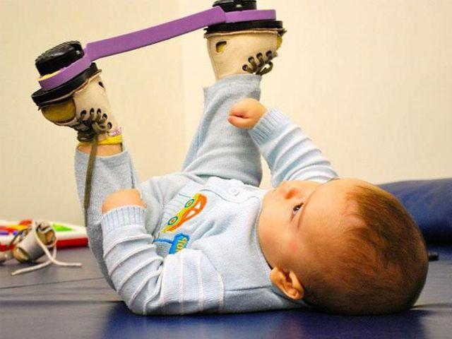 Лечение косолапости у детей