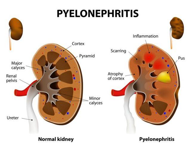 Пиелонефрит у беременных: причины, симптомы, диагностика, лечение